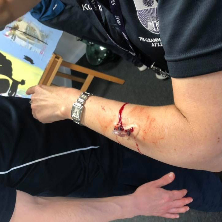 Fake wounds and bleeding